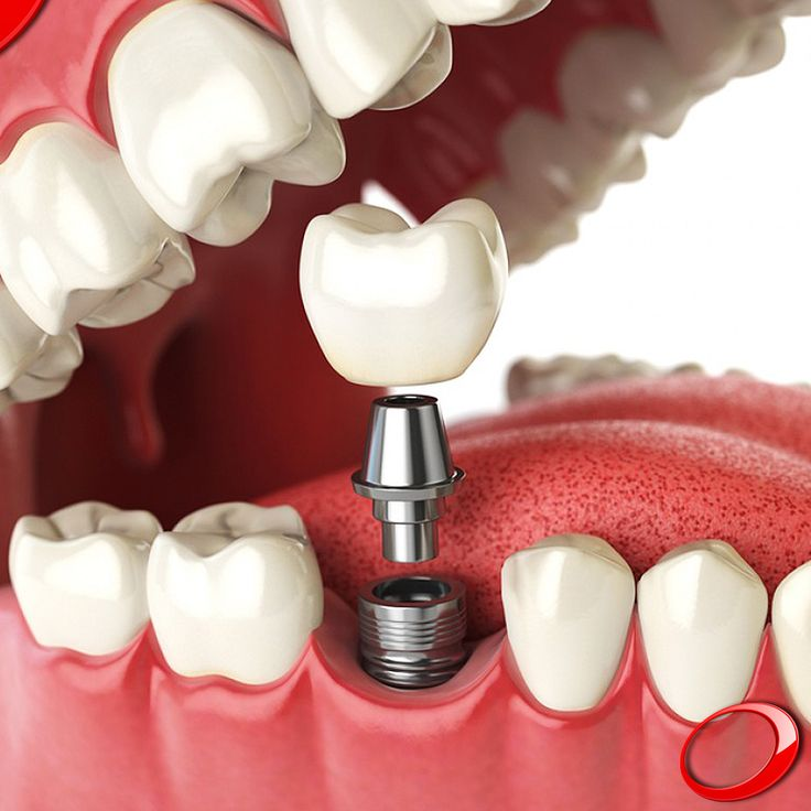 Dental implants are the answer you've been waiting for, to be able to smile again. Book your consultation now. www.dinp.co.uk
