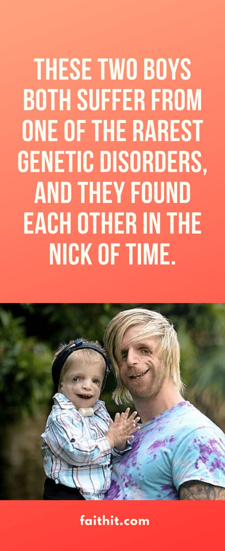These Two Boys Both Suffer from One of the Rarest Genetic ...