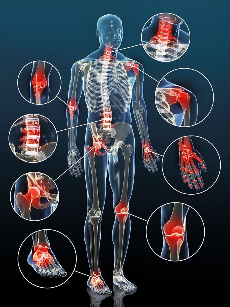 Naturheilmittel bei Arthrose Naturheilmittel können helfen, die Symptome der Arthrose zu lindern und den Verschleiß der Gelenke zu ver...