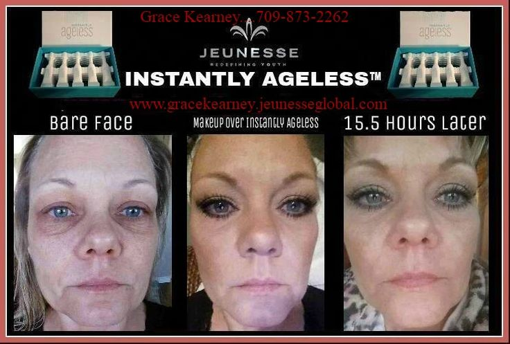 Amazing results with Instantly Ageless