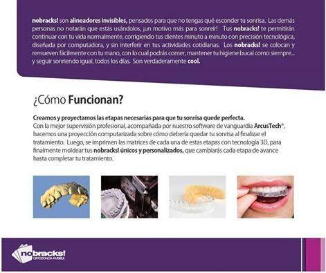 Qué es #nobracks ? Cómo funciona?  #smile #OrtodonciaInvisible