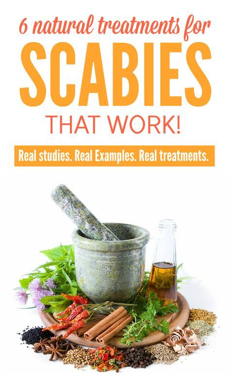 Suffering from scabies? Not keen on using harsh insecticides and prescription meds? Lucky for you many natural treatments have been proven to kill scabies effectively, some even better than prescription meds. Click through to see six highly effective natural scabies treatments, with the science and studies to prove it.