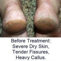 Dry Cracked Heels and Heel Fissures Treatment, Heel Sock and Creams, Podiatrist Seattle, Washington