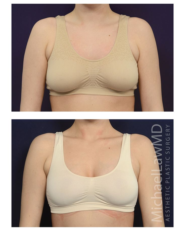 Best 8 Breast Augmentation Before And Afters Images On