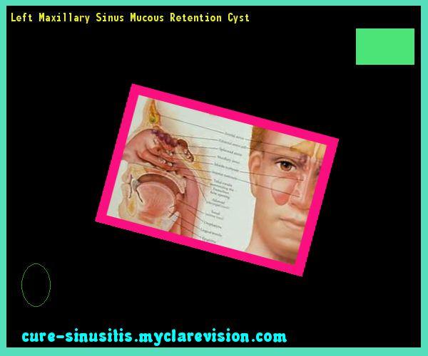 Left Maxillary Sinus Mucous Retention Cyst 185907 - Cure Sinusitis