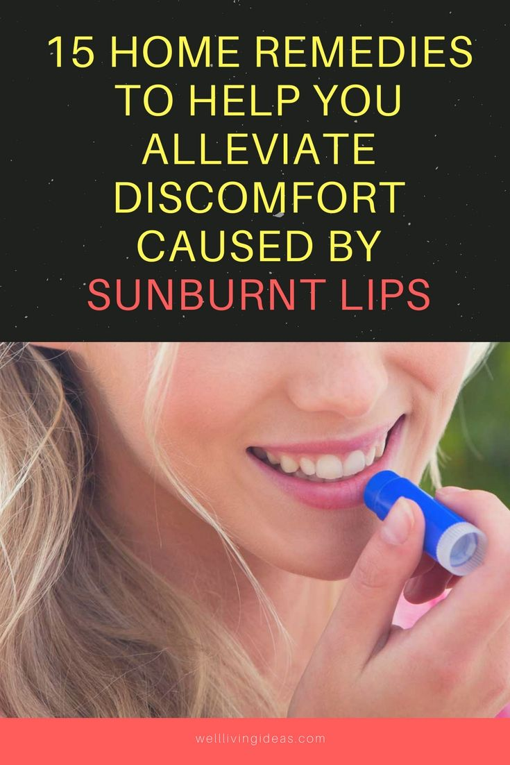 15 Most Effective Home Remedies for Sunburned Lips