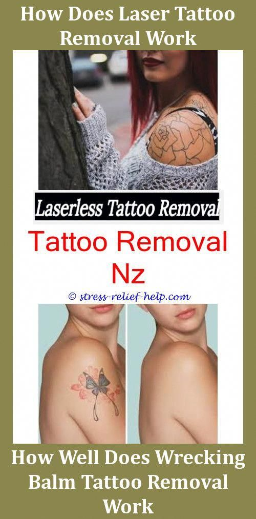 Can Tattoos Be Removed Completely Top Tattoo Removal Doctors Can You