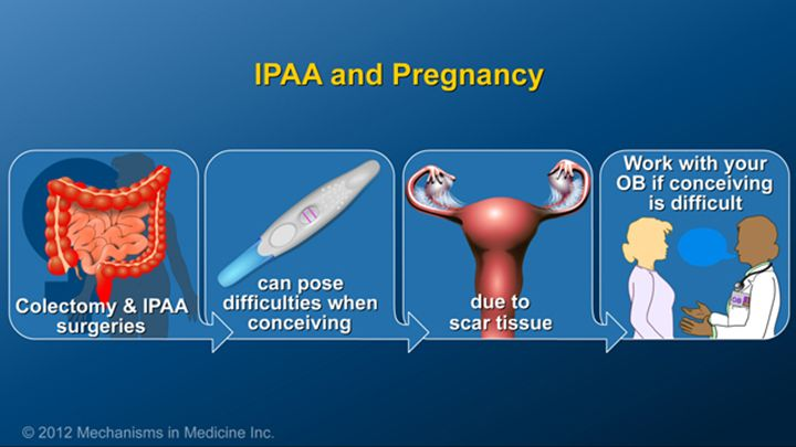 Women with IBD can typically become pregnant as easily as other women however those who have undergone a colectomy with ileal pouch anal anastomosis (IPAA) may have more difficulty due to the formation of adhesions or scarring on the fallopian tubes. Consult your obstetrician about fertility options if you are having trouble getting pregnant.slide show: optimizing pregnancy outcomes with ibd. this slideshow describes issues females with ibd should consider before getting pregnant. the…