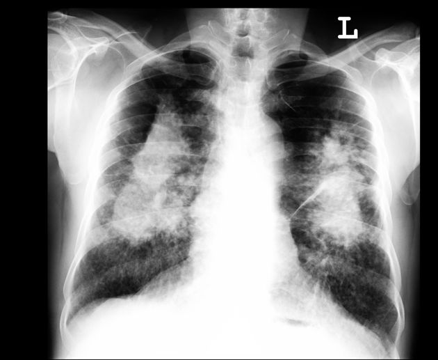 Pulmonary Fibrosis X Ray Lung silicosis with pr...