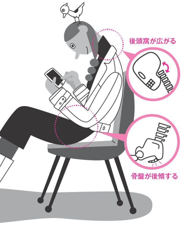 スマートフォン(スマホ)が広まるにつれて、「首」と「骨盤」のゆがみが深刻化する人が増えています。この2カ所のゆがみが副交感神経の機能を低下させ、首こり、頭痛、月経痛などの不調を悪化させているようです。「スマホゆがみ」を首と骨盤から解消し…[6ページ目]