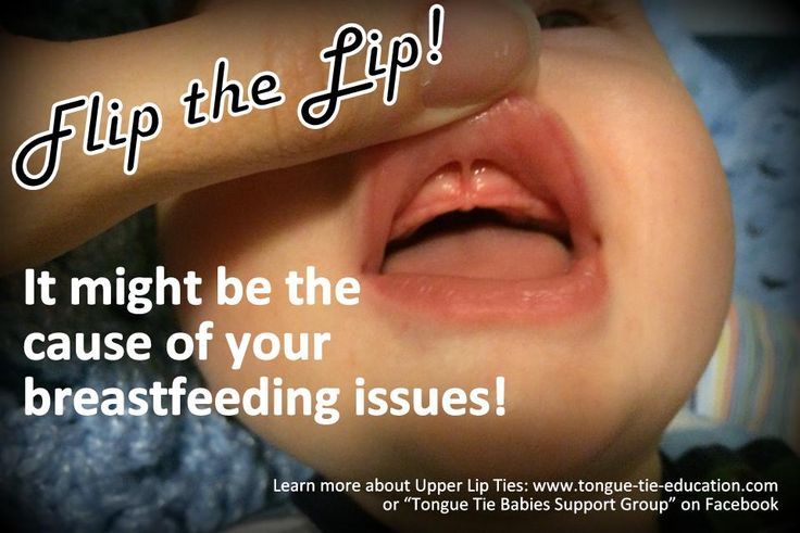 Did you know upper-lip ties are frequently present when there is a tongue tie? And either or both may make breastfeeding difficult? If you suspect a tongue-tie, flip the lip ! The presence of a thick...