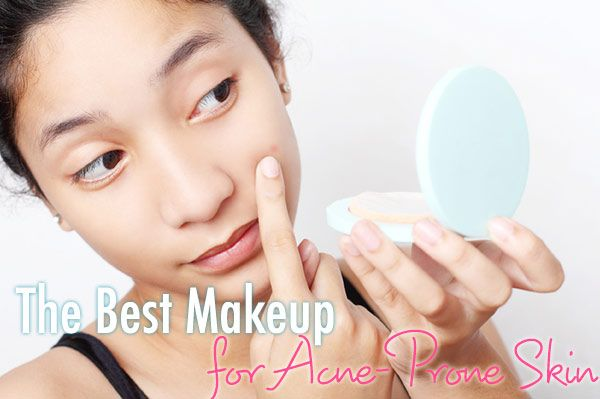 Best Makeup for Acne-Prone skin -- high end and budget options + explanations.  Great site!