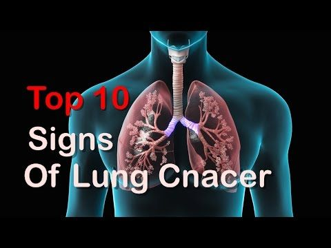 TOP 10 Early Signs Of Lung Cancer You Should Can't Ignore These Signs - WATCH VIDEO HERE -> http://bestcancer.solutions/top-10-early-signs-of-lung-cancer-you-should-cant-ignore-these-signs    *** signs of lung cancer ***   TOP 10 Early Signs Of Lung Cancer You Should Can't Ignore These Signs. Now a Days lung cancer is mainly caused by death of american side of peoples this is caused by many things like pollute water and usage of many type of alcohol and too much usage