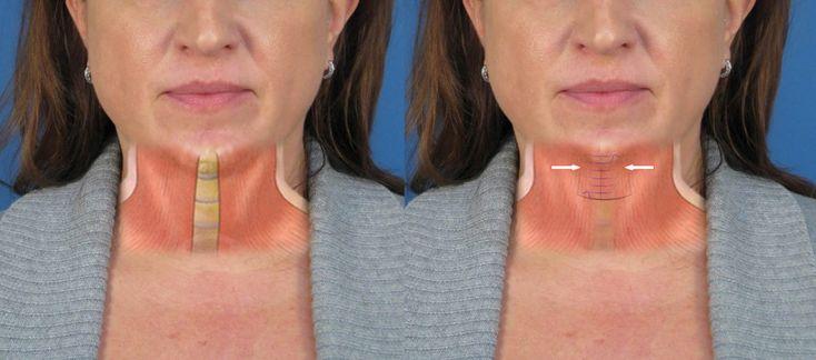 NeckDiagramPlatysmaplasty Also called corset platysmaplasty