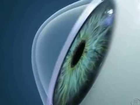 Болезнь кератоконус глаза. Диагноз кератоконус. Keratoconus видео YouTube