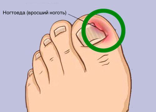 Как правильно решить проблему вросших ногтей и что такое ноктоеда? - Шаг к Здоровью