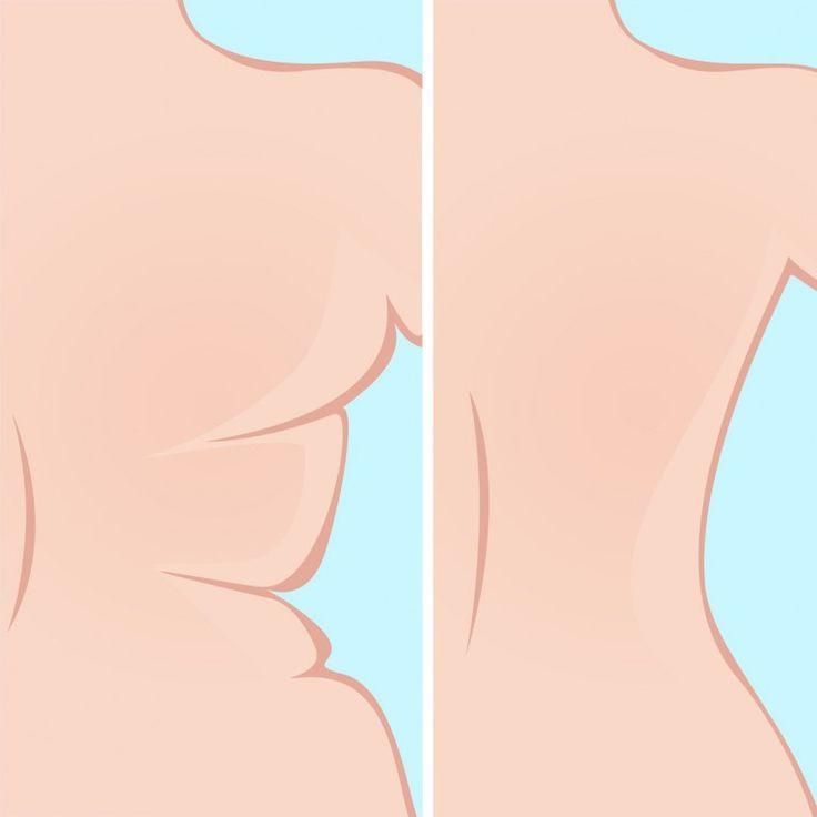 Wir haben für euch die fünf besten Übungen gegen Rückenspeck zusammengestellt. So werdet ihr die lästigen Röllchen unter dem BH endlich los...