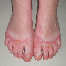 You could be allergic to your SHOES! Find out more about shoe allergy ...