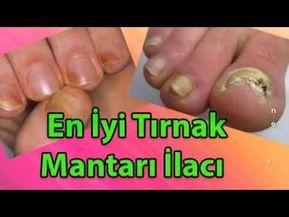 BU ŞAKA DEĞİL; Yarım Limonu Karbonata Batırıp Yaptığını Görünce Hayret Edeceksiniz !! - YouTube