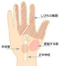 手根管症候群 - Google 検索