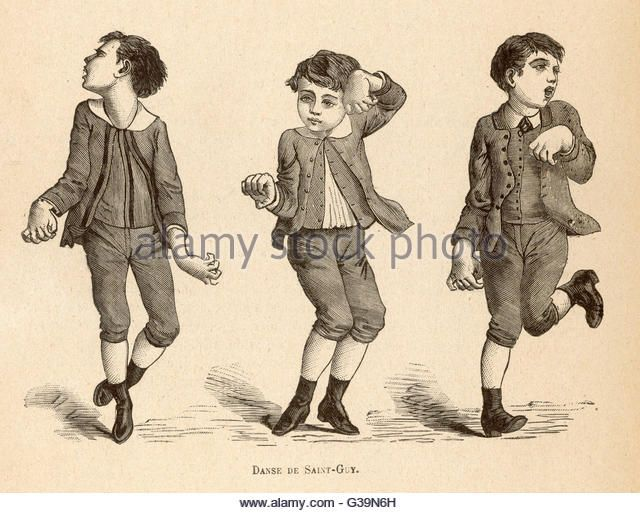 Boys afflicted with Chorea,  known as St Vitus' dance, or  as Danse de Saint-Guy in  France        Date: circa 1880 - Stock Image