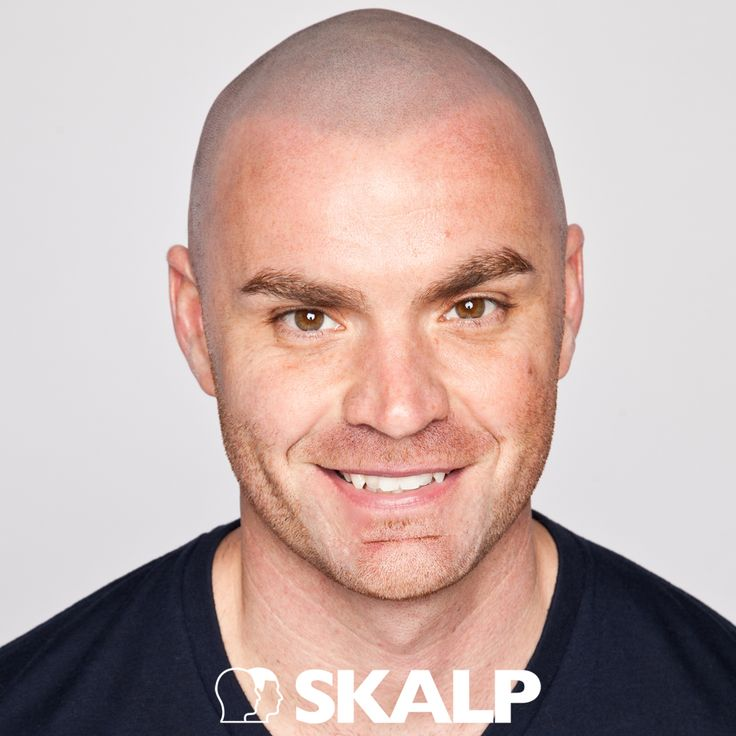 Scalp Pigmentation is the top mens cosmetic treatment for a the cropped style and the ultimate soloution to mens hair loss issues!! #hairloss #menshair