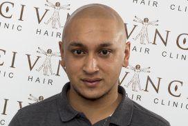 Micropigmentação do Couro Cabeludo para Alopecia