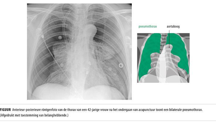 Bilaterale pneumothorax na acupunctuur.  https://www.ntvg.nl/artikelen/een-acuut-benauwde-vrouw-na-acupunctuur/volledig