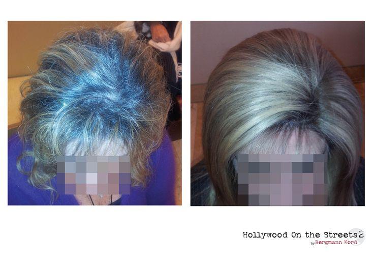 www.hos2.gr  HOS-2 είναι νέα τεχνική αποκατάστασης μαλλιών στους ογκολογικούς ασθενείς μετά τις χημειοθεραπείες.