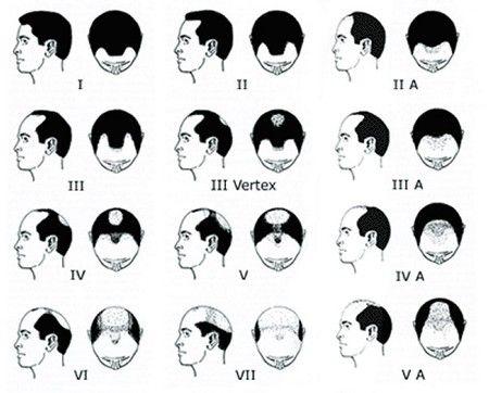 Male Pattern Baldness. Pattern Male Baldness. Baldness Pattern Male.