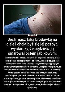 Brodawki