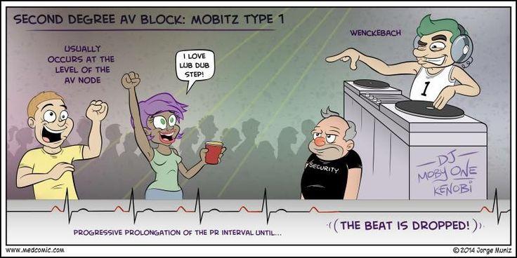 Bloqueo de segundo grado: Mobitz tipo 1