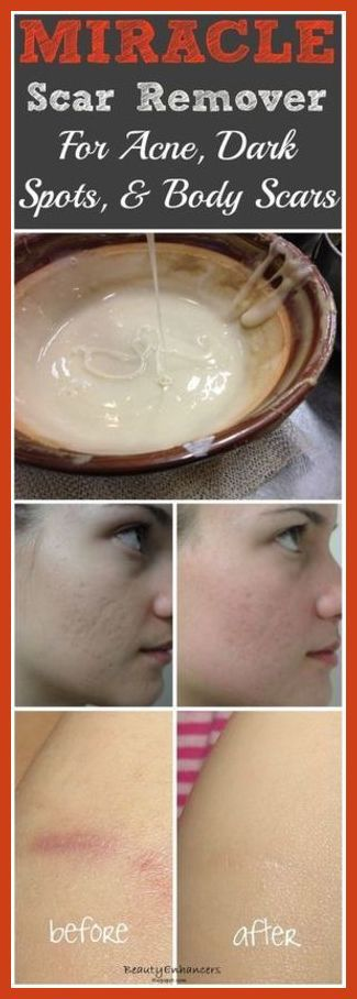Covering Acne - How to Cure Acne Naturally by Changing Your Makeup Routine *** For more information, visit image link. #CoveringAcne
