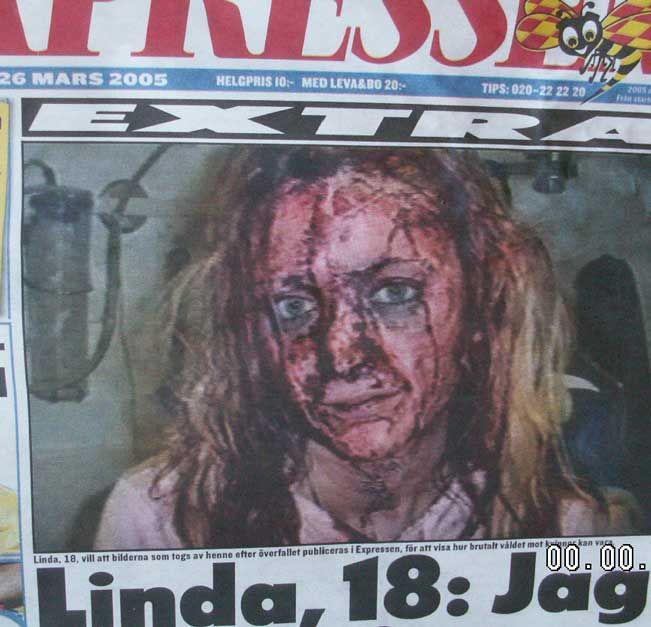Raped and beaten by Somali Immigrants/this is the result of multi-culturalism in sweden-  get them all out of europe NOW, especially out of our white northern lands.  sharia law allows this and encourages this.