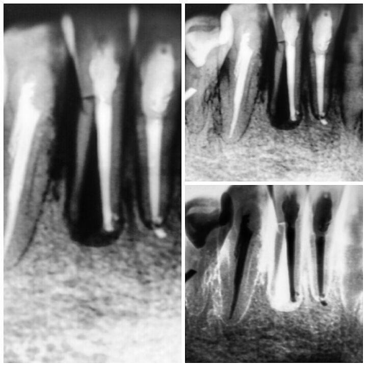 #Endodontics #Endodoncia #RootCanal #Endodontia #Endo #Roots #Endodontie #VerticalFracture Dentistry #Dental #Dentist #Odontologia #radixentomolaris #EndoLovers Terrible fractura vertical en un incisivo inferior exodoncia indicada! by drjcrespo Our Root Canals Page: http://www.myimagedental.com/services/general-dentistry/root-canals/ Other General Dentistry services we offer: http://www.myimagedental.com/services/general-dentistry/ Google My Business…