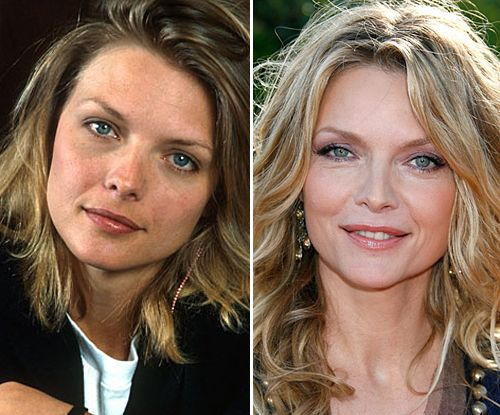 Michelle Pfeiffer & More Hollywood Noses Before/After ...