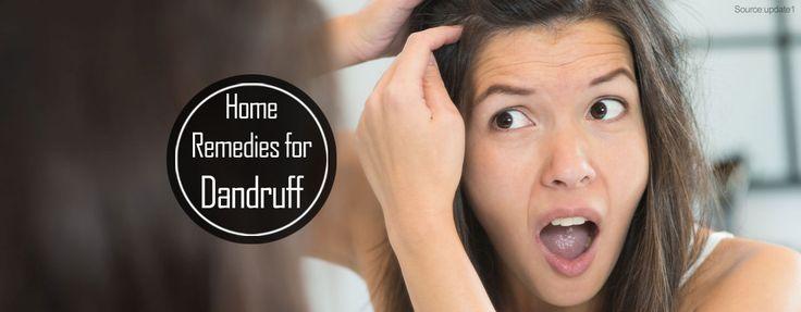 How to Reduce Dandruff? 5 Home Remedies for Dandruff