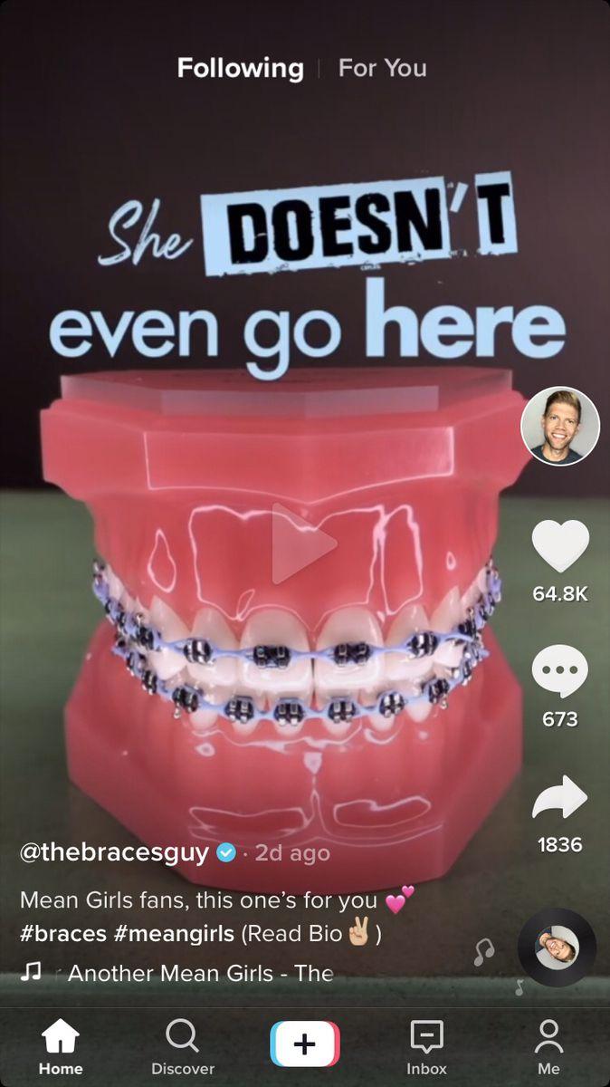 Pin By Shelby Richard On Braces Braces Teeth Colors Braces Colors Combinations Dental Braces Colors