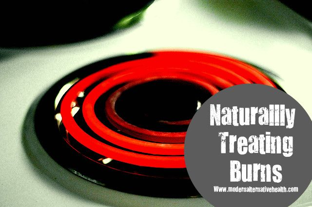 5 Ways To Naturally Treat Burns...I knew about Aloe Vera, but there are four other surprising ways listed here too, love this!!