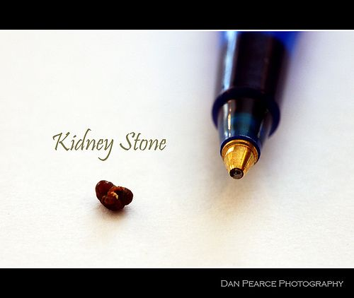 21 Best Kidney Stone Remedy Report Review Images On