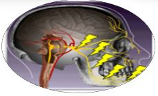 Gamma Knife Surgery India - A Sophisticated Treatment for Trigeminal neuralgia