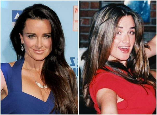 Kyle Richards Plastic Surgery Before & After