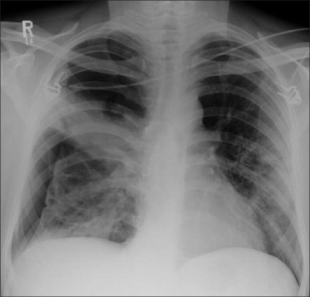 :Pneumocystis carinii pneumonia. Pneumothoraces are often refractory to conventional chest tube drainage, becoming chronic, requiring pleurodesis or surgical intervention as in this patient
