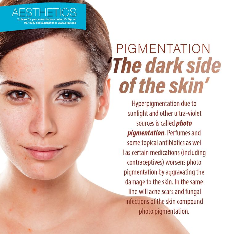 Pigmentation: 'The dark side of of the skin' Hyperpigmentation due to sunlight and other ultra-violet sources is called photo pigmentation. Perfumes and some topical antibiotics as well as certain medications (including contraceptives) worsens photo pigmentation by aggravating the damage to the skin. In the same line will acne scars and fungal infections of the skin compound photo pigmentation. For more information or bookings contact EMAIL:HELLO@DRGYS.COM