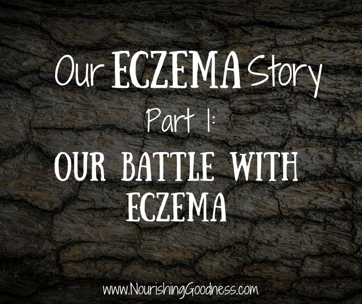 Our story of overcoming severe eczema, topical steroid withdrawal (tsw), leaky gut, and food sensitivities ~ Naturally!  How to Heal Eczema, What Causes Eczema, Natural Treatments for Eczema