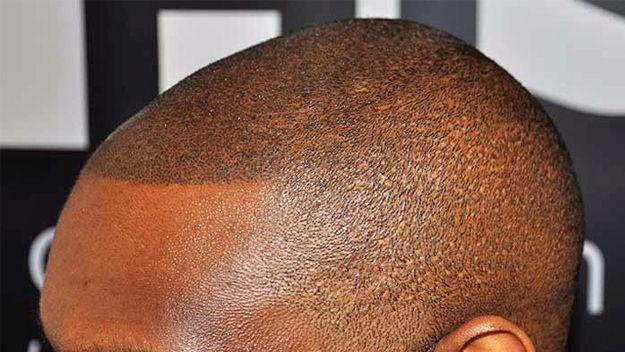 Best 25 scalp tattoo ideas on pinterest head tattoos for Tattoo bald spot