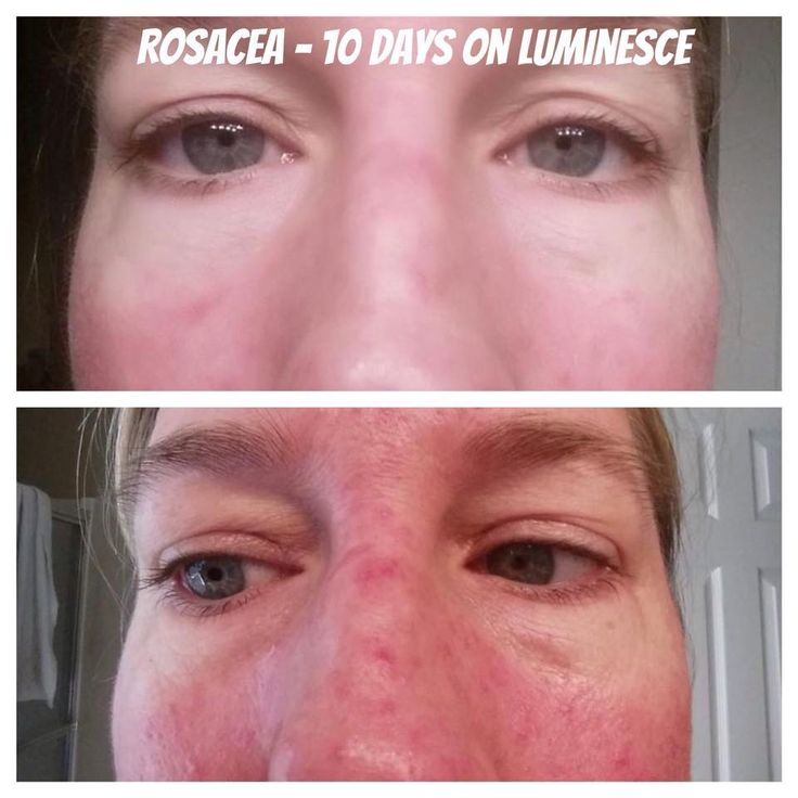 10 days after using Celluar Rejuvenating Serum Rosacea is gone!!The serum reduces fine lines and dark spots. Buy it here at http://www.agelesskateyes.jeunesseglobal.com