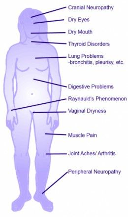 What is Sjogren's Syndrome? How To Tell If You Might Have It ~~ This is a very good way to tell if you might have it. I have testes positive for Sjogren's and I have probably 95% of these symptoms.