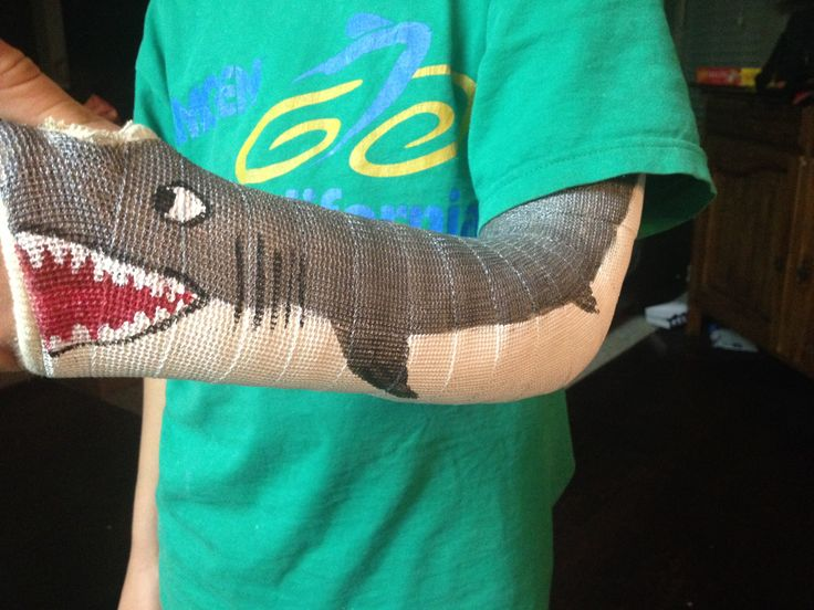 Painting a Great White Shark on my son's cast, one way to make a broken arm cool. Classic tickets dirty you can paint over it again.
