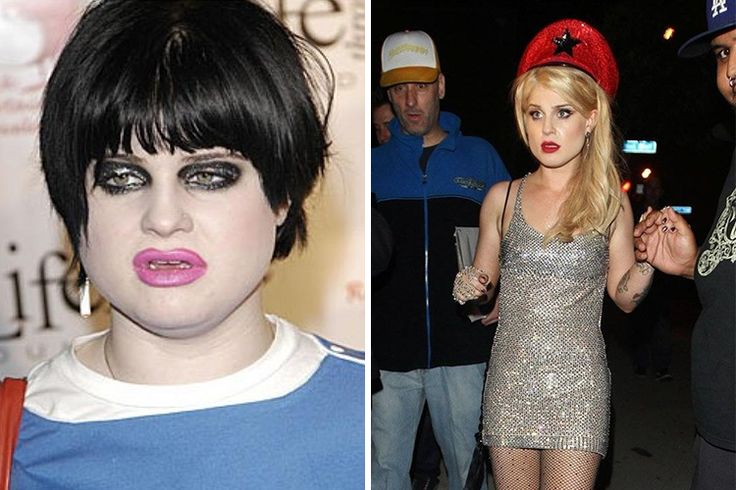 200 best images about Celebrity Plastic Surgery & More ...Kelly Osbourne Weight Loss Surgery